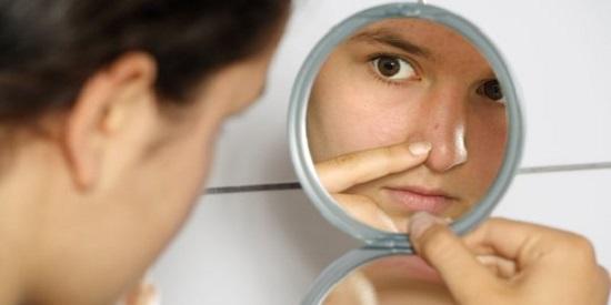 5 Cara Menghilangkan Bekas Jerawat dan Flek Hitam